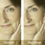 Collagen Booster Protein – Was ist das?