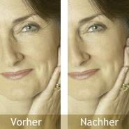 Falten Vorher / Nachher