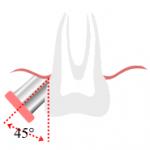 Zähneputzen: wie oft, wie und wann
