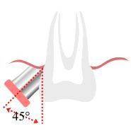 Zähneputzen - rütteln