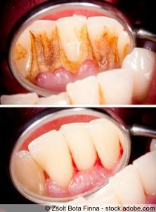 Zahnreinigung vorher nachher
