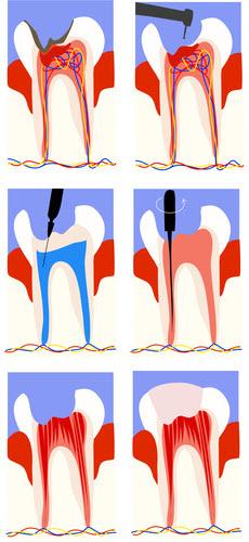 Zähne: Wurzelbehandlung-Schritte