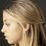 PRP Behandlung und moderne Methoden der Haartransplantation