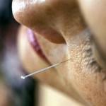 Akupunktur und Lebensenergie
