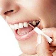 Remos Zahnverfärbungsradierer